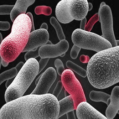 Picture of gray and pink bacteria.