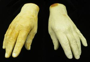 Yellowing white plaster casts of a right and left hand, set on a black cloth background.