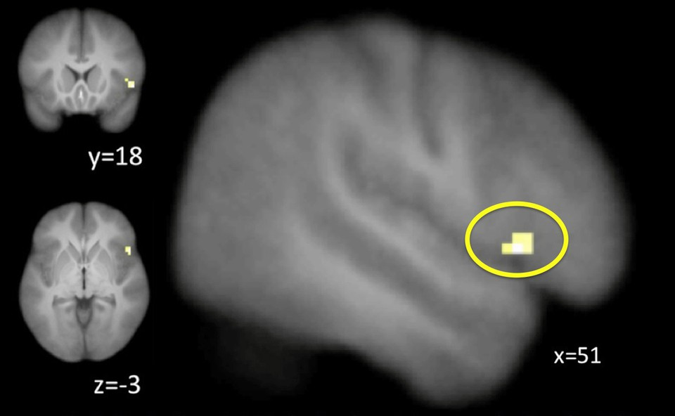 Activity in the right inferior frontal gyrus (yellow) shifted from during control (reactive) to before control (proactive).