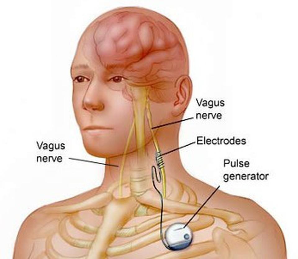 Vagus Nerve Brain Image 1 Vagus Nerve