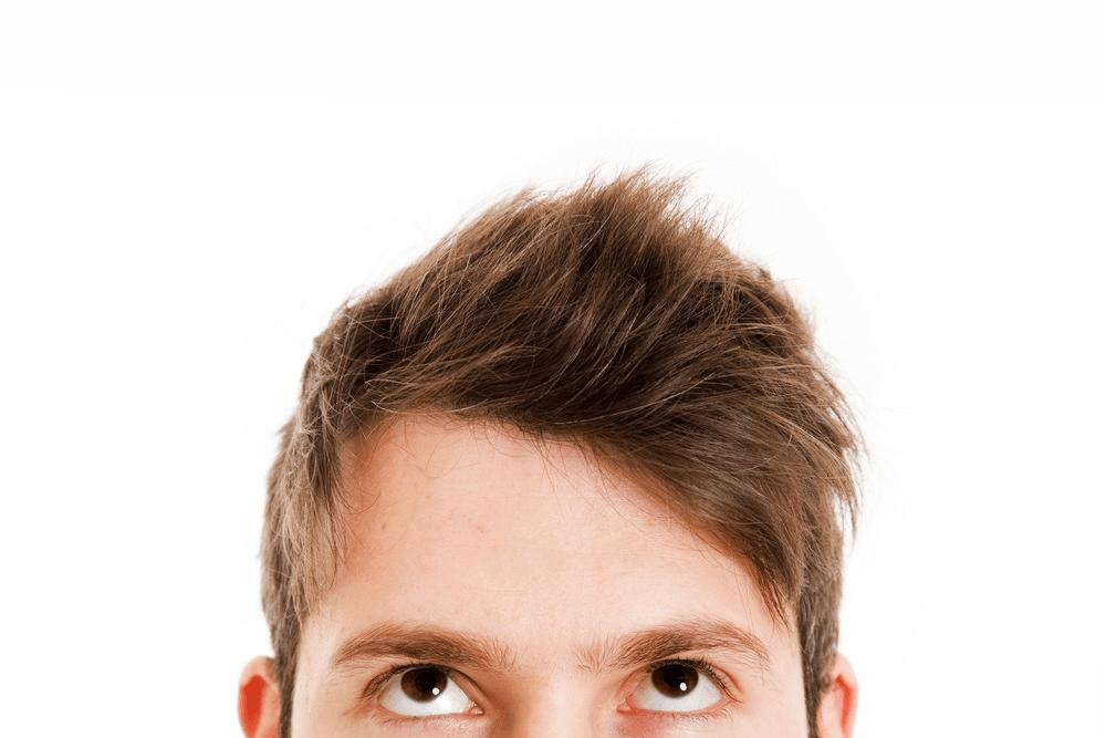 tratamiento para la calvicie, pérdida de cabello, mejor tratamiento anticaida, caída del cabello