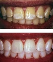 crest 3d glamorous white strips before and after