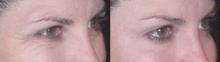 Botox...