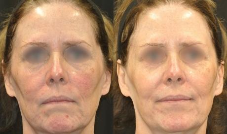 Tight and Bright Rejuvenation (Laser Procedure)