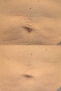 Laser Skin Tightening - Series of Six Treatments