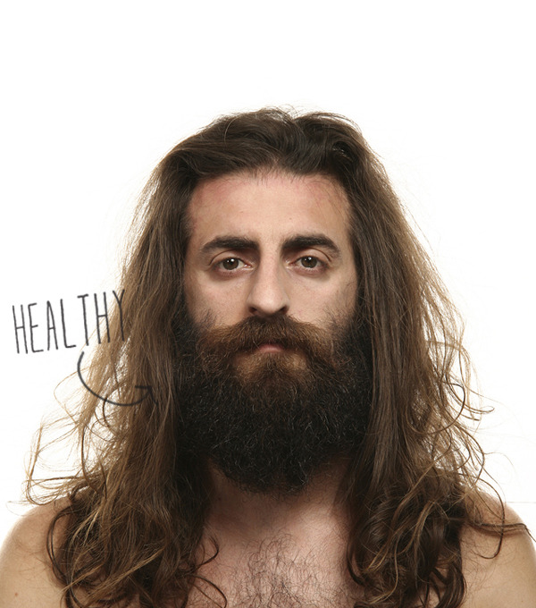 Beards-healthy_large