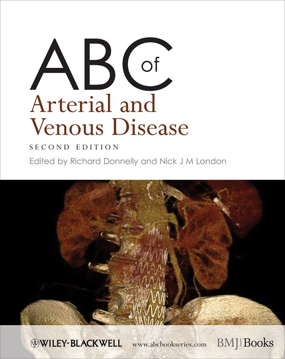 ABC of Arterial and Venous Disease Cover Image