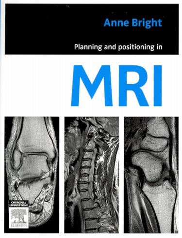Planning and Positioning in MRI Cover Image