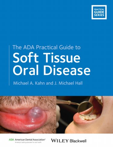 ADA Practical Guide to Soft Tissue Oral Disease Cover Image