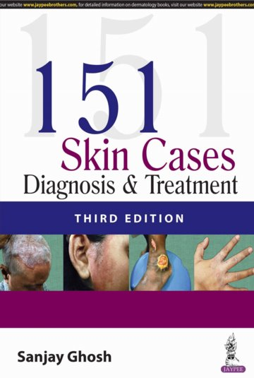 151 Skin Cases: Diagnosis and Treatment Cover Image