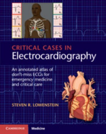 Critical Cases in Electrocardiography: An Annotated Atlas of Dont-Miss ECGs for Emergency Medicine and Critical Care Cover Image