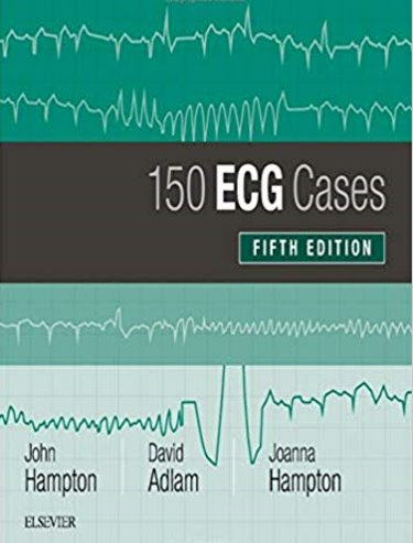 150 ECG Cases. Text with Access Code (Student Consult) Cover Image