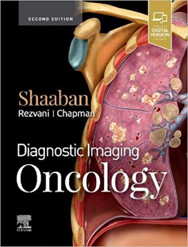 Diagnostic Imaging: Oncology. Text with Access Code (Expert Consult) Cover Image
