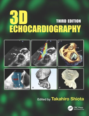 3D (Three Dimensional) Echocardiography Cover Image