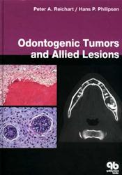 Odontogenic Tumors and Allied Lesions Image