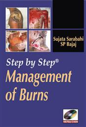 Step by Step Management of Burns. Text with DVD