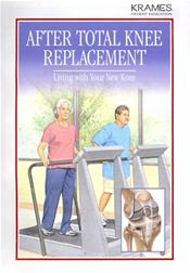 After Total Knee Replacement: Living with Your New Knee