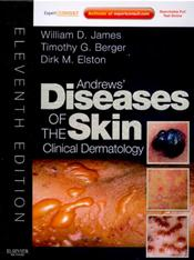 Andrews Diseases of the Skin: Clinical Dermatology. Text with Internet Access Code for Expert Consult Edition Cover Image