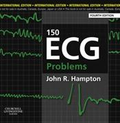 One Hundred Fifty ECG Problems Cover Image
