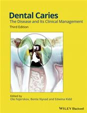 Dental Caries: The Disease and Its Clinical Management