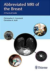 Abbreviated MRI of the Breast: A Practical Guide Cover Image