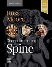 Diagnostic Imaging: Spine. Text with Access Code (Expert Consult) Cover Image