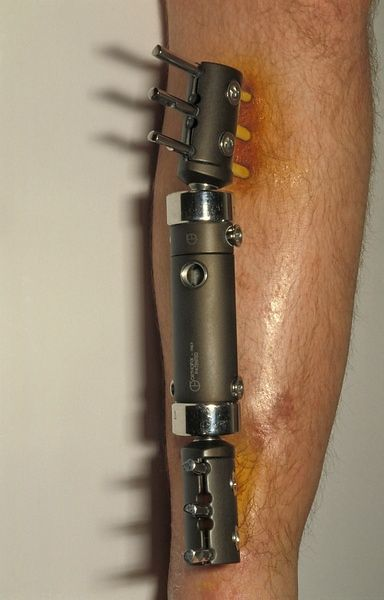 External fixator for fractured tibia3