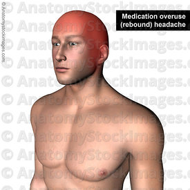 head-headache-medication-overuse-rebound-headaches-pain-painlocation
