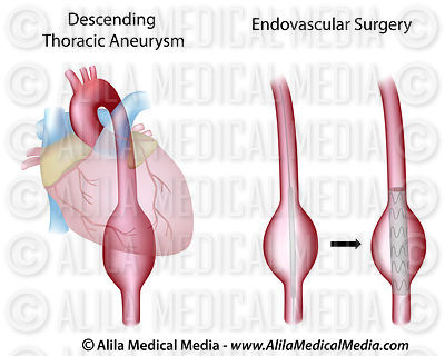 Thoracic aortic aneurysm and surgery