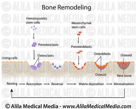 Bone remodeling labeled diagram.