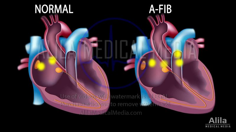 Atrial fibrillation animation loop