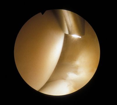 View of the femoral condyle and meniscus showing the position of the arthroscope when inserted through a superior portal