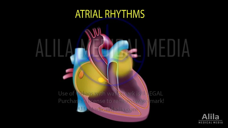 Cardiac arrhythmias NARRATED part 2