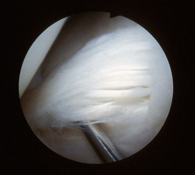 Meniscus showing fibrillation