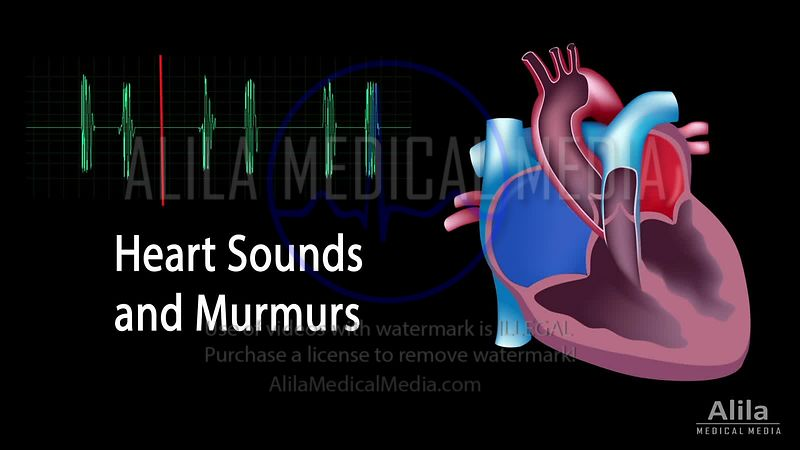 Heart sounds and murmurs NARRATED animation