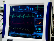 Thoracic Impedance Monitor