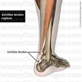 lowerleg-achilles-tendon-rupture-back-skin-names