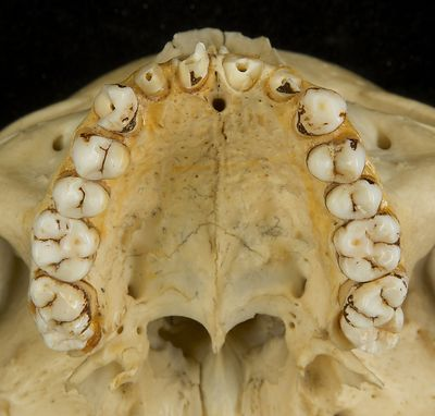 Maxilla and mandible photos