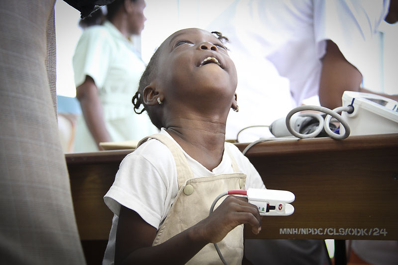 Sickle Cell Disease patient at Muhimbili Wellcome Program, Dar es Salaam, Tanzania.