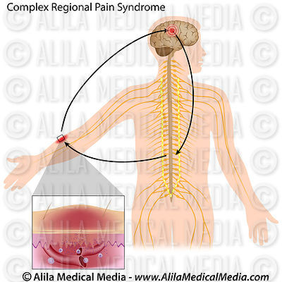 Complex regional pain syndrome unlabeled.