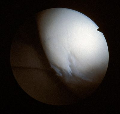 Osteoarthritis of the femoral condyle showing loose chondral surface.