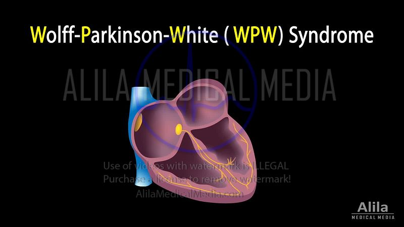 Wolff-Parkinson-White,  WPW  syndrome NARRATED animation