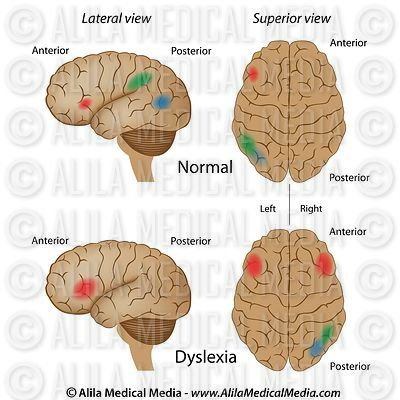 Dyslexia brain activity vs normal