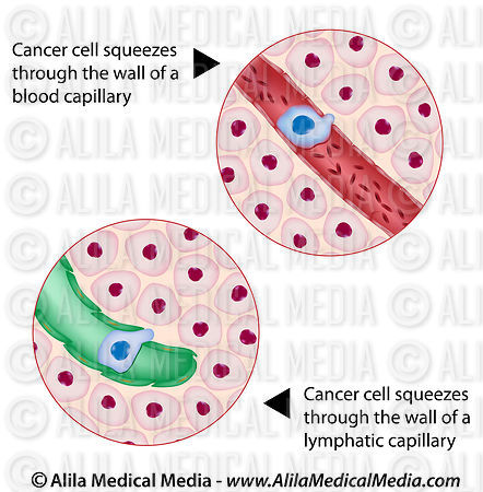 Cancer cell squeezes through blood and lymph vessel