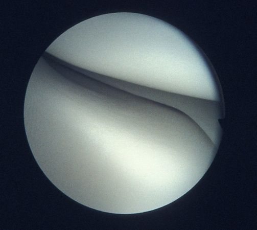 Arthroscopy photos