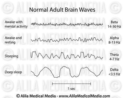 Normal Brain Waves EEG