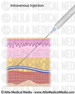 Voveran Injection Im Or Iv