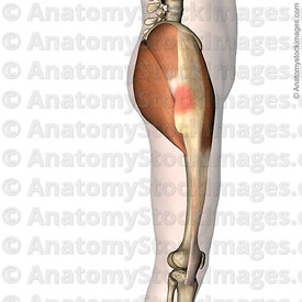 hip-greater-trochanteric-pain-syndrome-gluteus-maximus-medius-trochanter-major-iliotibial-band-side-skin