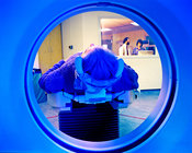 MRI scanning for Alzheimer's