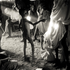 A boy pleads for food in an emergency feeding centre in Ajiep, South Sudan